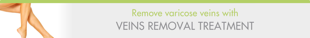 Veins Removal-Header