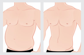 Sydney South West Male Tummy Tuck