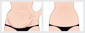 Sydney South West Vaser Liposuction