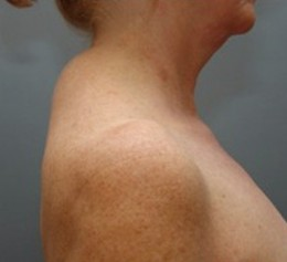 steroid muscle spasm