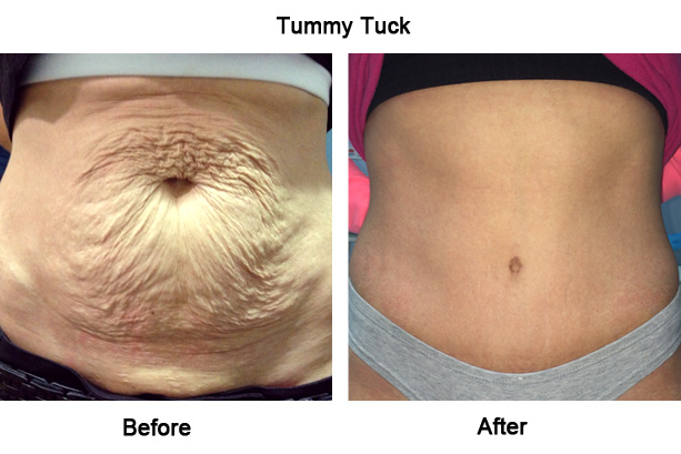 Img 4824 Jpg 1b Tummy Tuck Before After V2