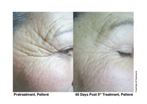 5-pelleve-before-after-treatment-photos-image-5-web