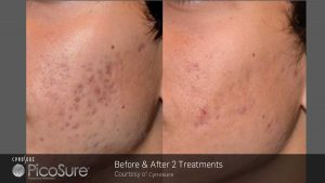 ba_picosure_rsaluja_post2tx_acne_patient-web