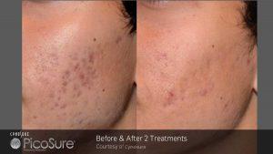 ba_picosure_rsaluja_post2tx_acne_patient-web