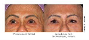 patient-11-upper-face-after-3-pelleve-web