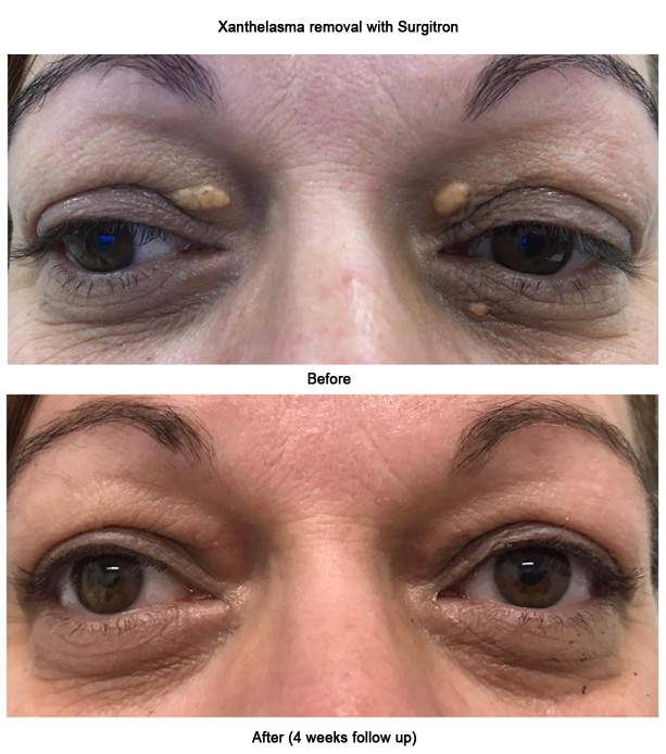 Xanthelasma Removal With Surgitron 4weeks Follow Up Before After