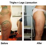 VASER Liposuction