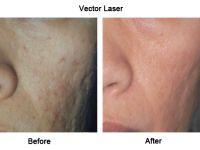 Laser Skin Toning - RevLite SI