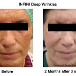 INFINI Cosmetic Procedure