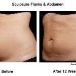 Sculpsure Body Contouring