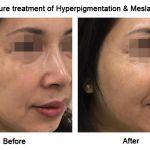 Picosure Facial Rejuvenation